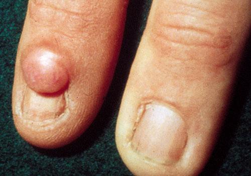 Figure 1: Periungual fibroma of tuberous sclerosis.
