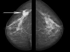 mammogram showing cancer