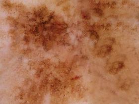 Dermatoscopy photo