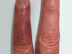 bruised finger