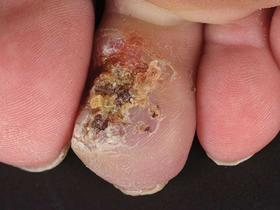warty lesion
