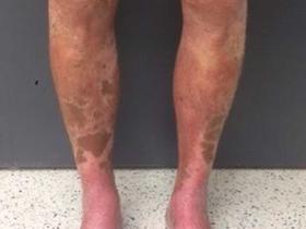 peculiar leg rash