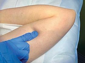 Figure 1. Sacha's current implant site.