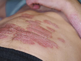 senior man with psoriasis on abdomen and arm