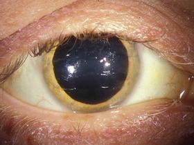 golden eye