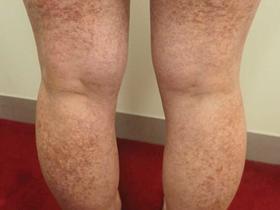 long-term rash