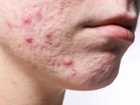 Adolescent face with acne