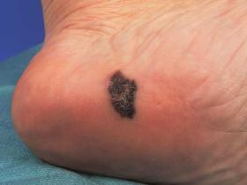 acral lentiginous melanoma on foot
