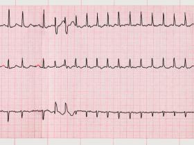 ECG showing AF