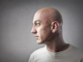 man with no hair