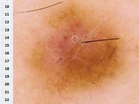 dermatoscopy