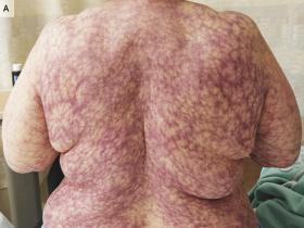 Purple rash