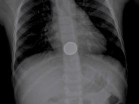button battery on X-ray