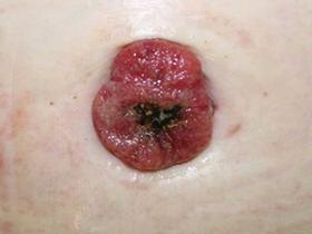 umbilical lesion