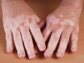 Vitiligo on hands