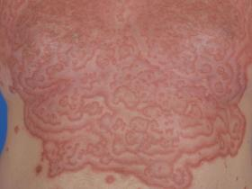 Erythema gyrated repens