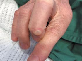 Osteoarthritis thumbs fingers