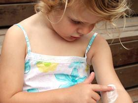 topical treatment - eczema