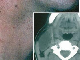 branchial cyst