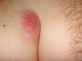 pilonidal abscess