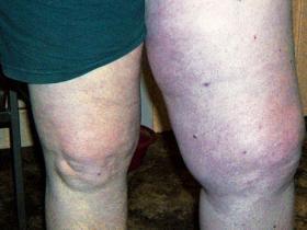 swollen leg