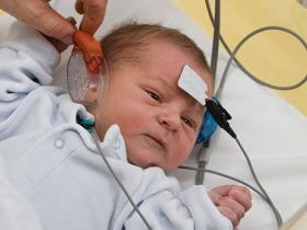 congenital CMV