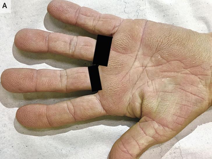 Patient's palms