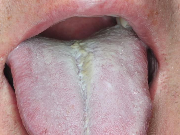 discoloured tongue