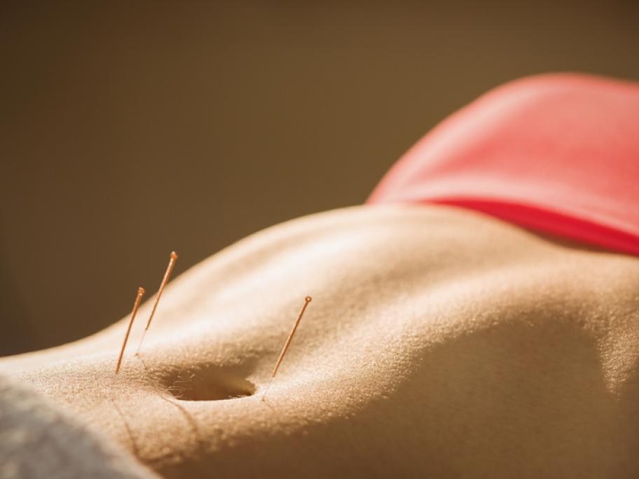 acpuncture woman's torso