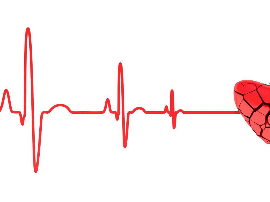cardiac arrest concept