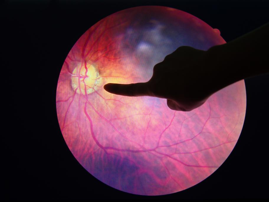 Eye checks
