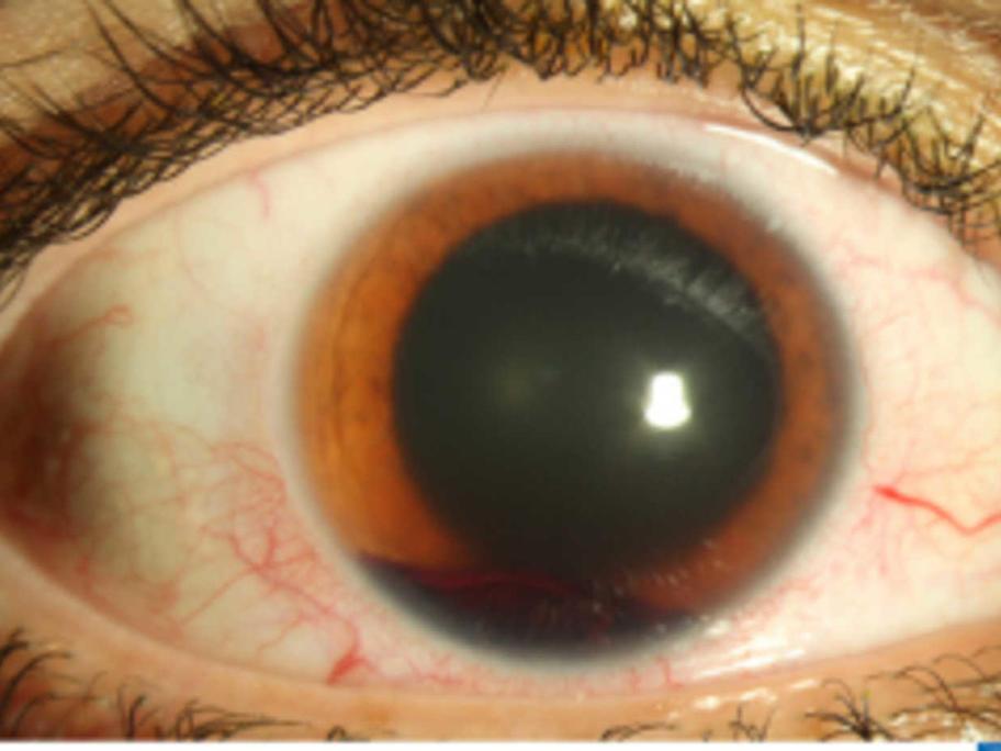 Nerf gun eye injury