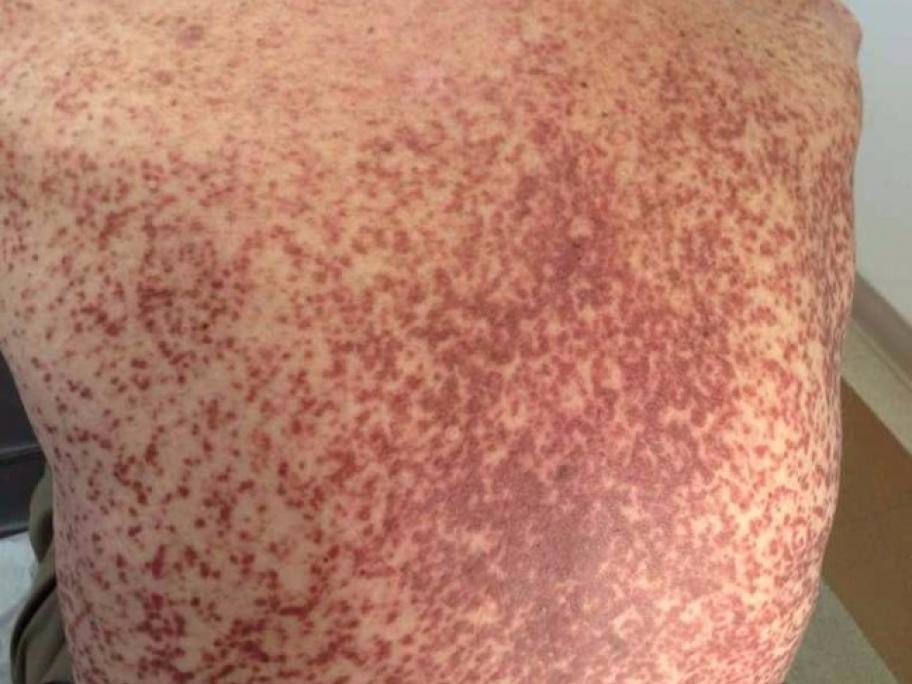 rash on back