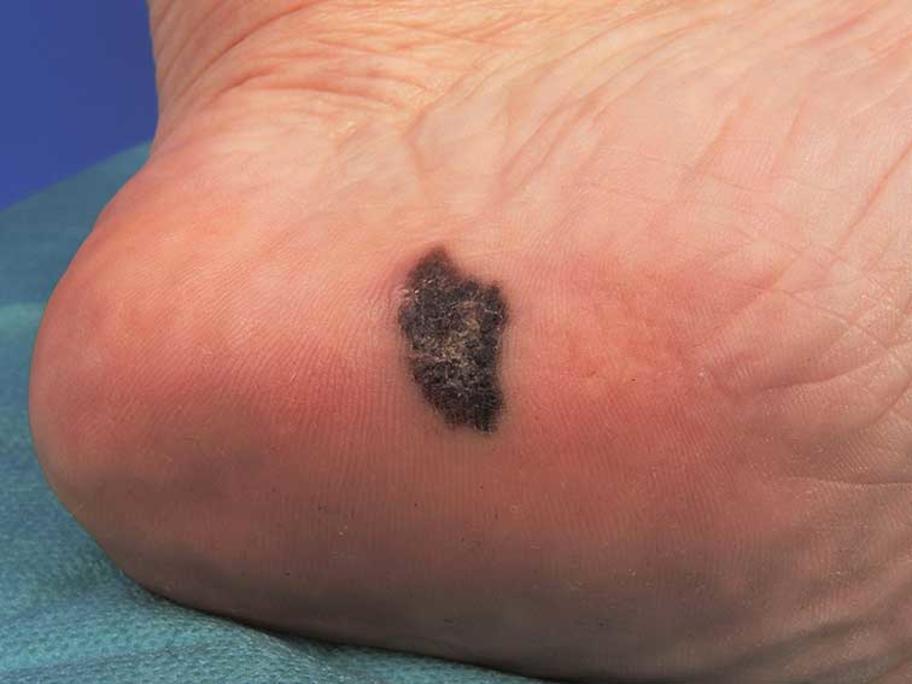 acral melanoma on heel