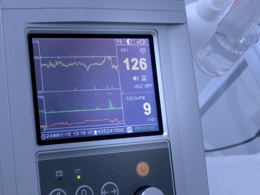 fetal heart rate