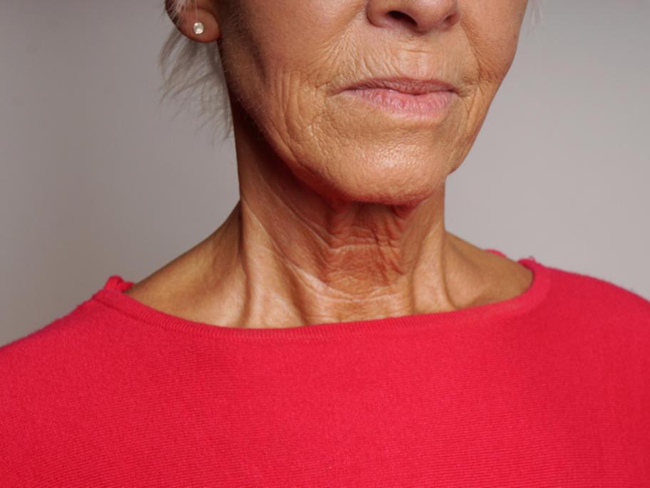 Senior woman's neck to ilustrate jugualr venous pressure