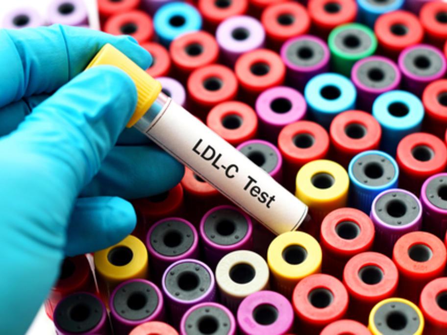 LDL-C test