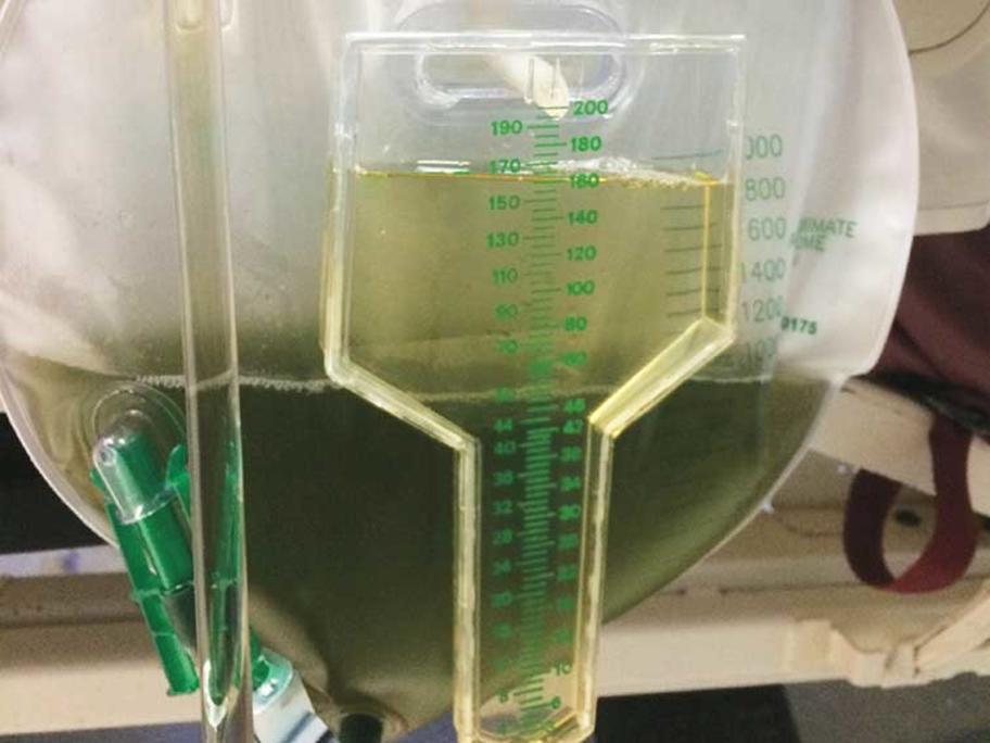 Green urine