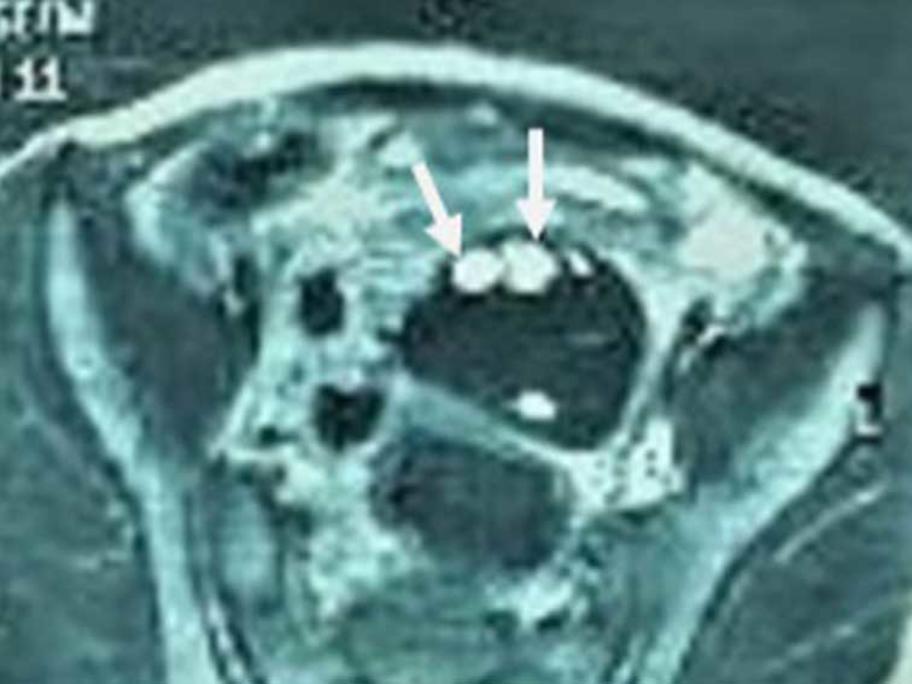 ovarian torsion