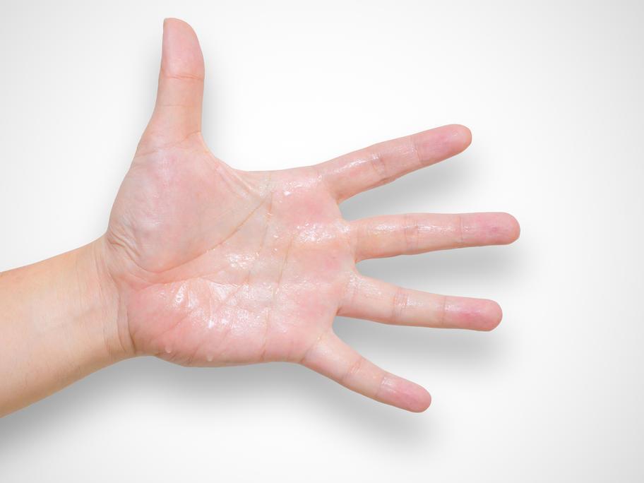 sweaty woman's hand