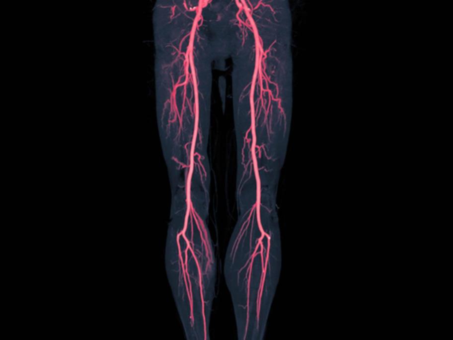 arteries of the legs