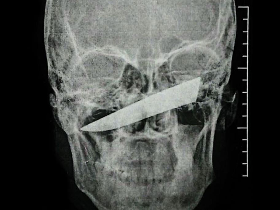 Knife in face