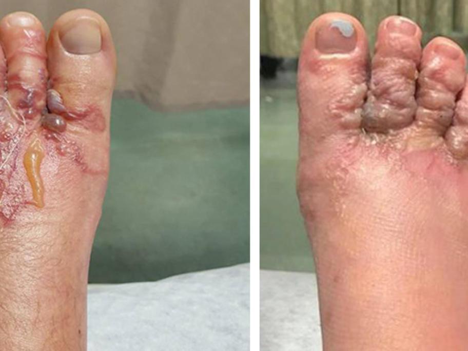 Hookworm_feet