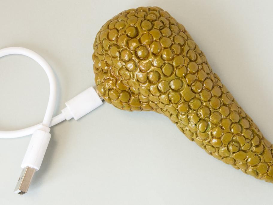 'Artificial' pancreas