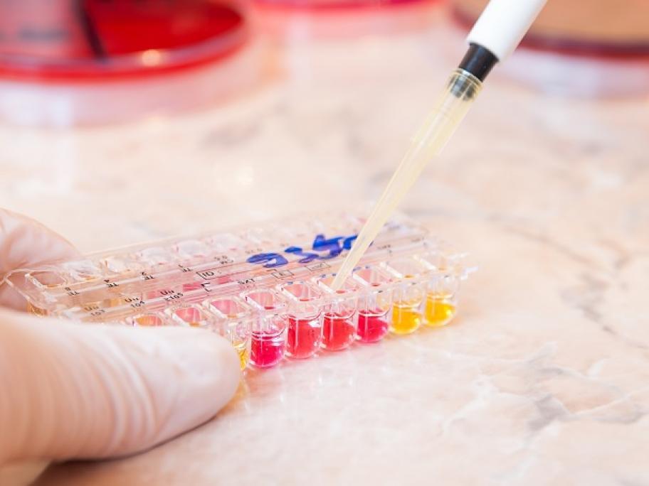 Testing urine