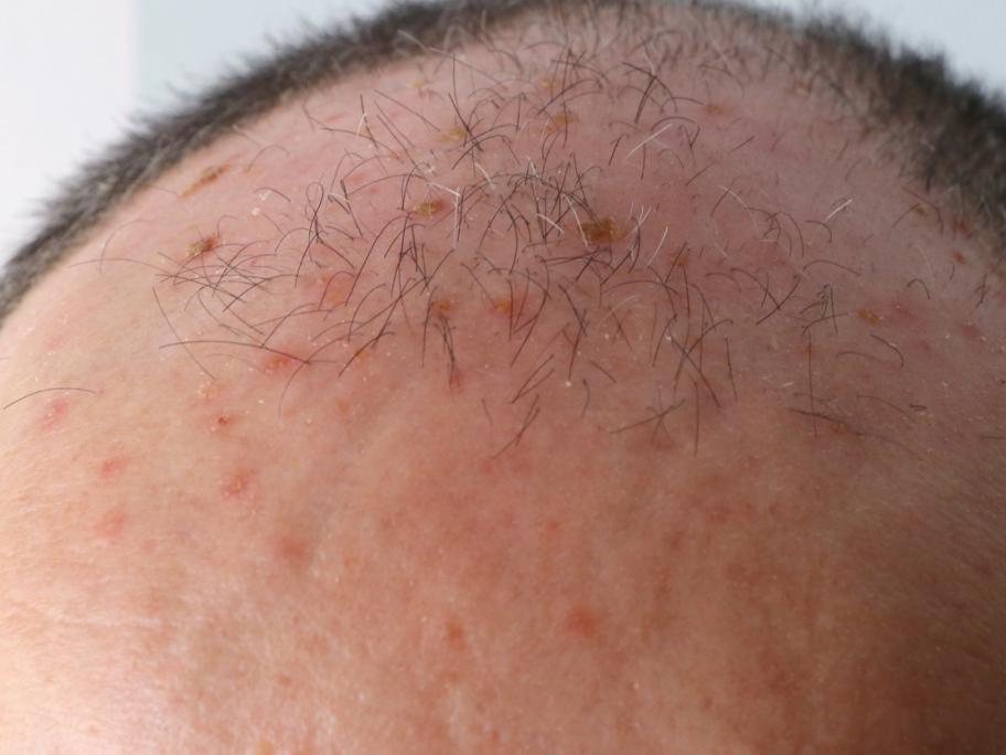 man's scalp with actinic keratoses