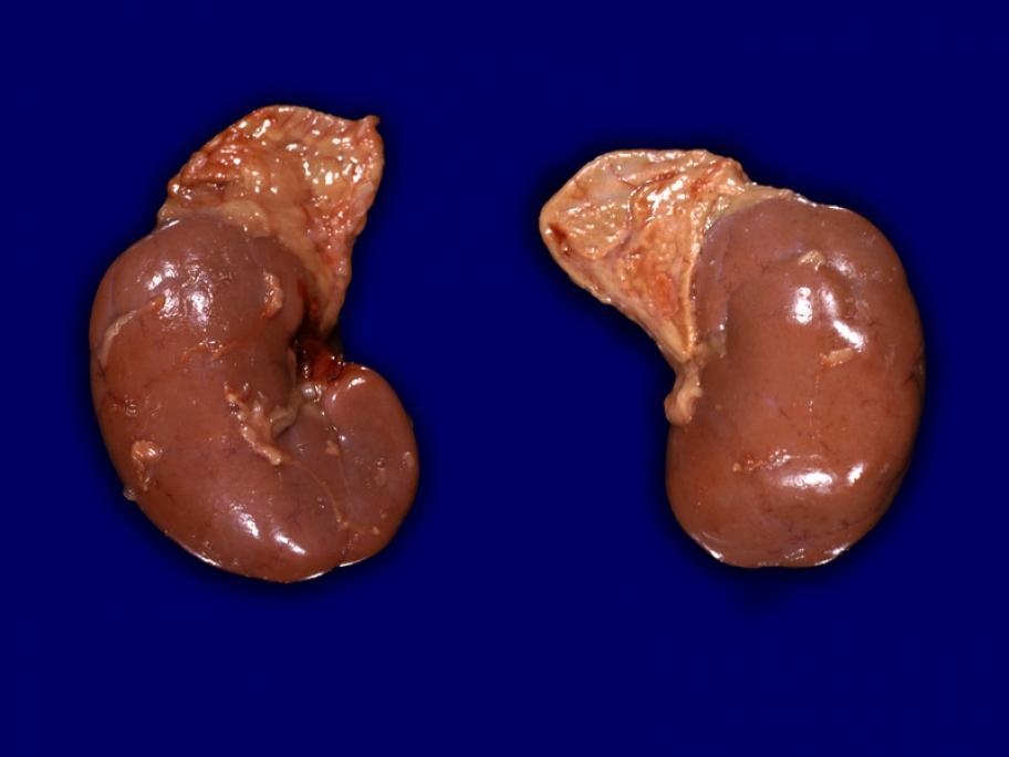 Kidneys and adrenal glands