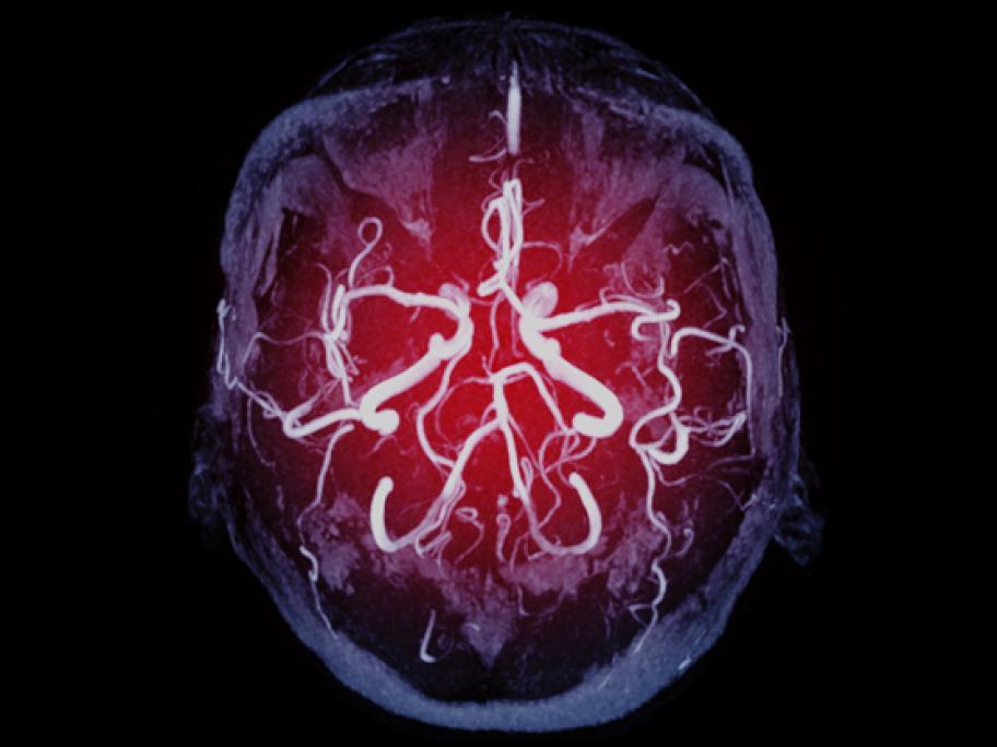 Brain image showing blood vessels