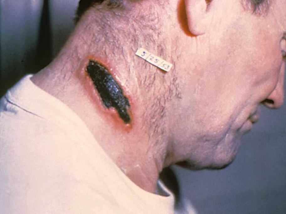 anthrax lesion
