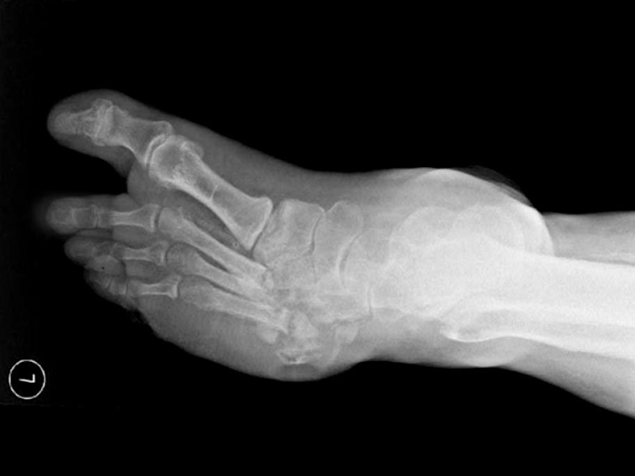 Diabetes foot BMJ
